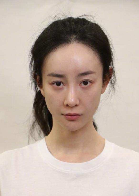 上綜藝痛哭後悔整容,再次向劉雨欣道歉,張檬還能重新開始嗎?
